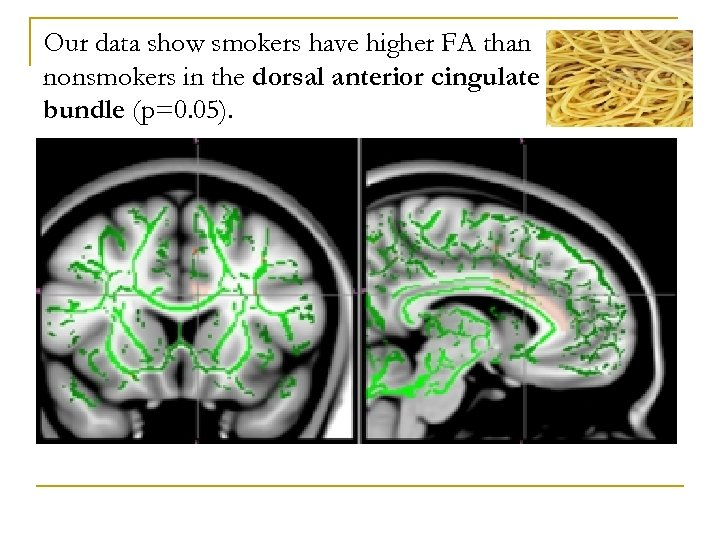 Our data show smokers have higher FA than nonsmokers in the dorsal anterior cingulate