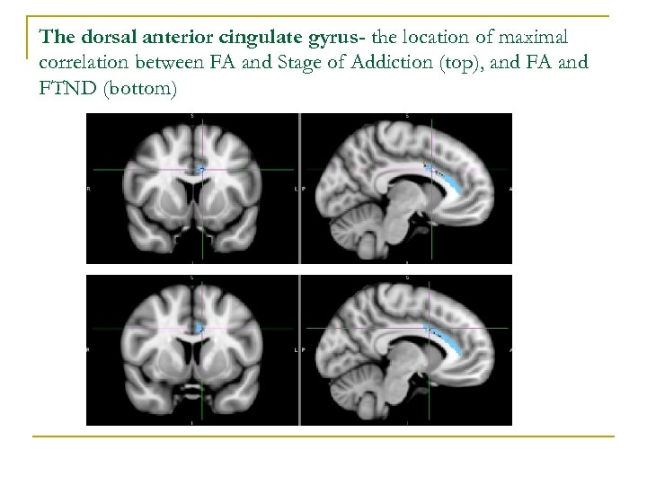 The dorsal anterior cingulate gyrus- the location of maximal correlation between FA and Stage
