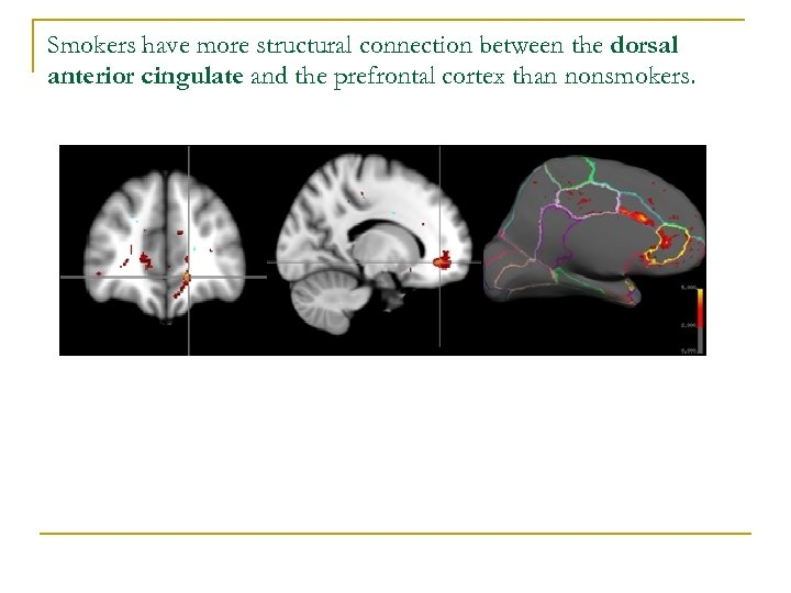 Smokers have more structural connection between the dorsal anterior cingulate and the prefrontal cortex