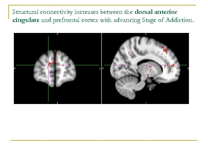 Structural connectivity increases between the dorsal anterior cingulate and prefrontal cortex with advancing Stage