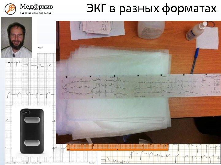 ЭКГ в разных форматах med@rhiv. ru www. medarhiv. ru