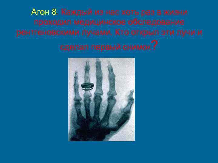 Агон 8. Каждый из нас хоть раз в жизни проходил медицинское обследование рентгеновскими лучами.