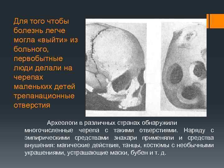 Для того чтобы болезнь легче могла «выйти» из больного, первобытные люди делали на черепах