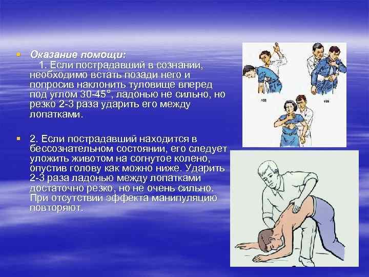 § Оказание помощи: 1. Если пострадавший в сознании, необходимо встать позади него и попросив
