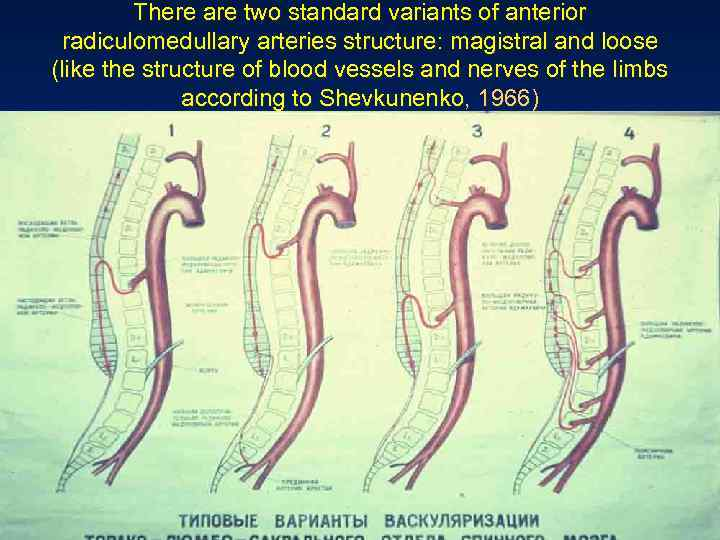There are two standard variants of anterior radiculomedullary arteries structure: magistral and loose (like