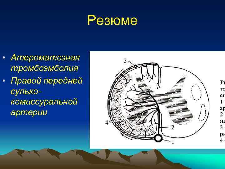 Резюме • Атероматозная тромбоэмболия • Правой передней сулькокомиссуральной артерии