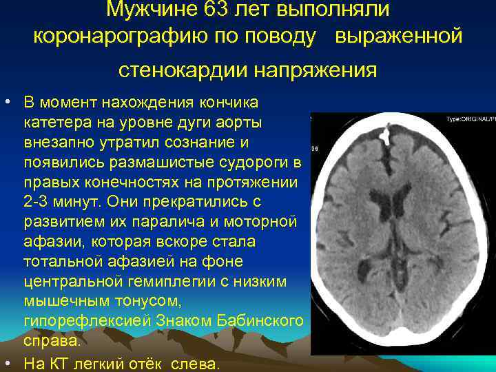 Мужчине 63 лет выполняли коронарографию по поводу выраженной стенокардии напряжения • В момент нахождения