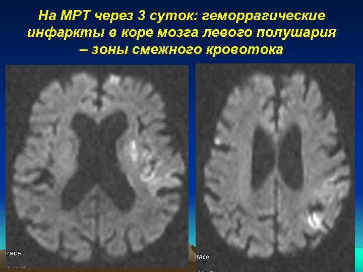 На МРТ через 3 суток: геморрагические инфаркты в коре мозга левого полушария – зоны
