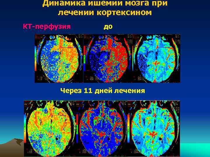Динамика ишемии мозга при лечении кортексином КТ-перфузия до Через 11 дней лечения