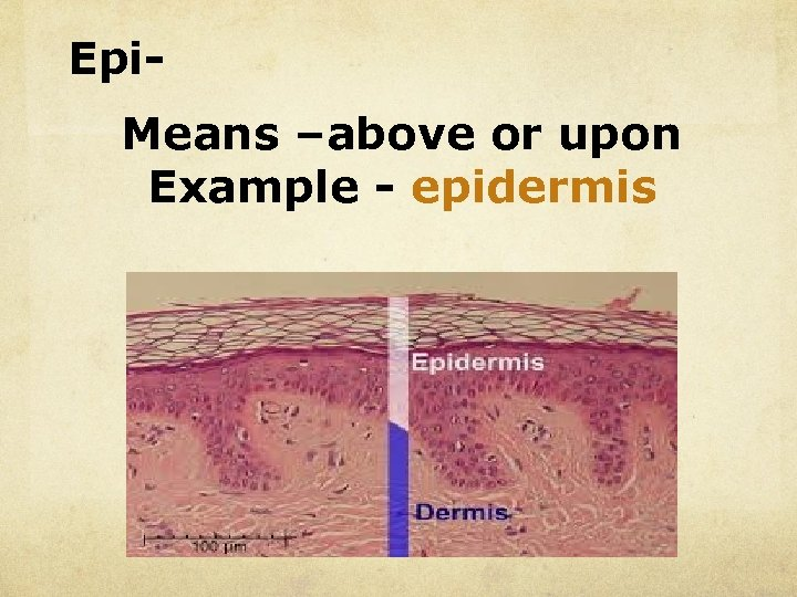 Epi. Means –above or upon Example - epidermis