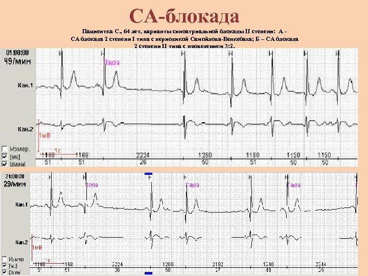 СА-блокада Пациентка С. , 64 лет, варианты синоатриальной блокады II степени: А - СА