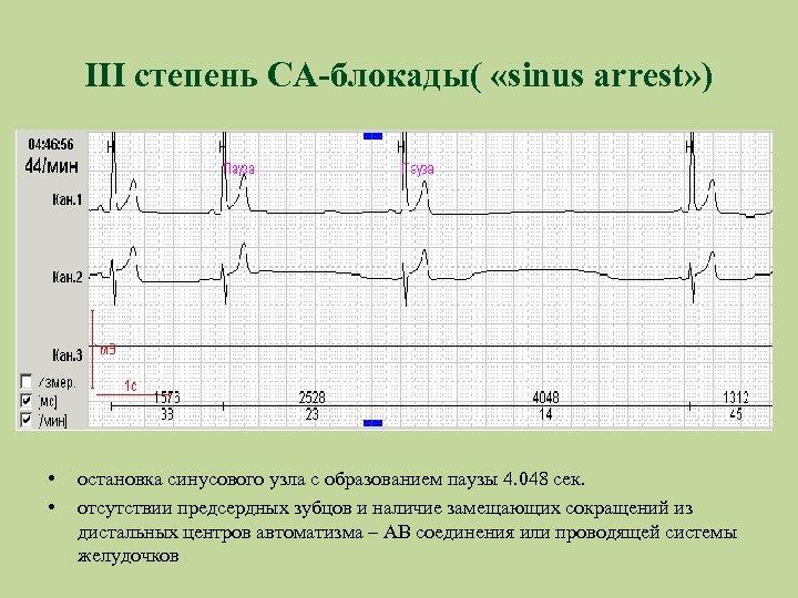 III степень СА-блокады( «sinus arrest» ) • • остановка синусового узла с образованием паузы