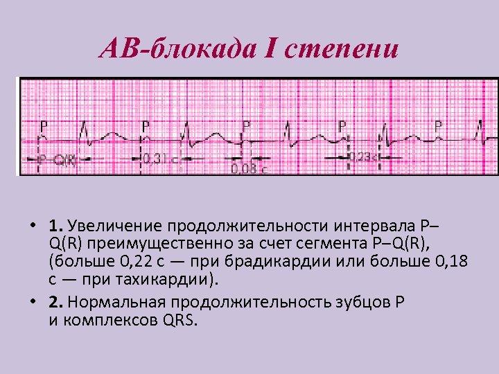 АВ-блокада I степени • 1. Увеличение продолжительности интервала P– Q(R) преимущественно за счет сегмента