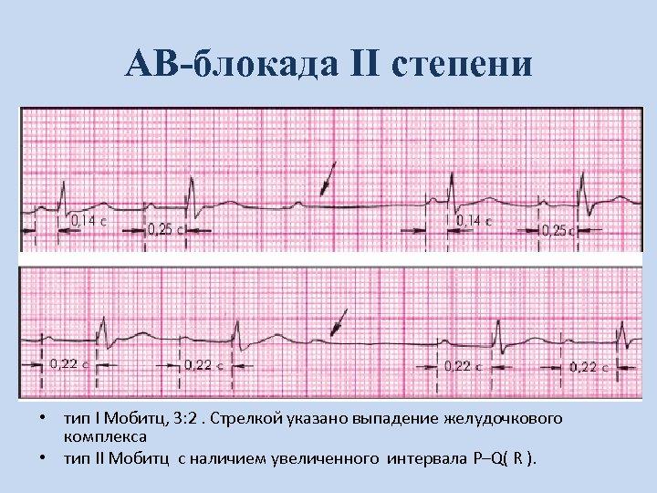 АВ-блокада II степени • тип I Мобитц, 3: 2. Стрелкой указано выпадение желудочкового комплекса