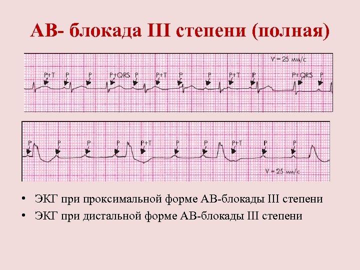 АВ- блокада III степени (полная) • ЭКГ при проксимальной форме АВ блокады III степени