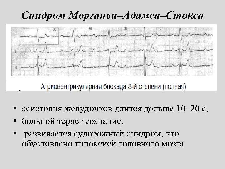 Синдром Морганьи–Адамса–Стокса • асистолия желудочков длится дольше 10– 20 с, • больной теряет сознание,