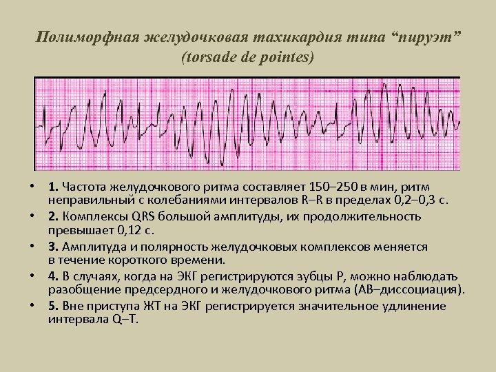 """Полиморфная желудочковая тахикардия типа """"пируэт"""" (torsade de pointes) • 1. Частота желудочкового ритма составляет"""