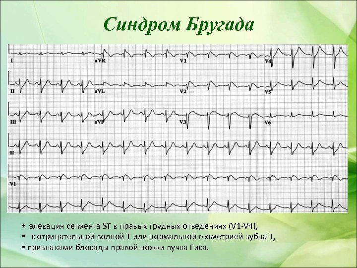 Синдром Бругада • элевация сегмента ST в правых грудных отведениях (V 1 -V 4),
