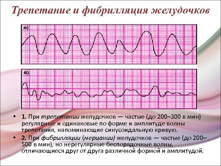 Трепетание и фибрилляция желудочков • 1. При трепетании желудочков — частые (до 200– 300
