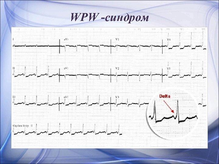 WPW -синдром