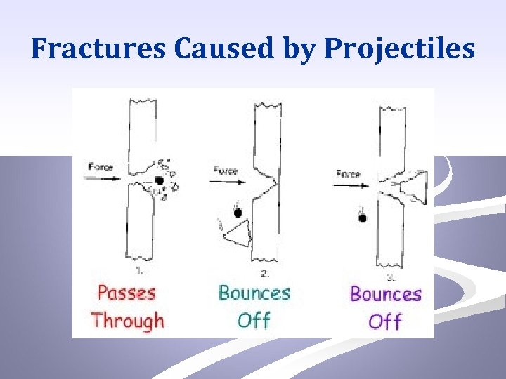 Fractures Caused by Projectiles
