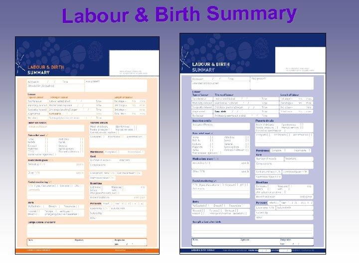 Labour & Birth Summary