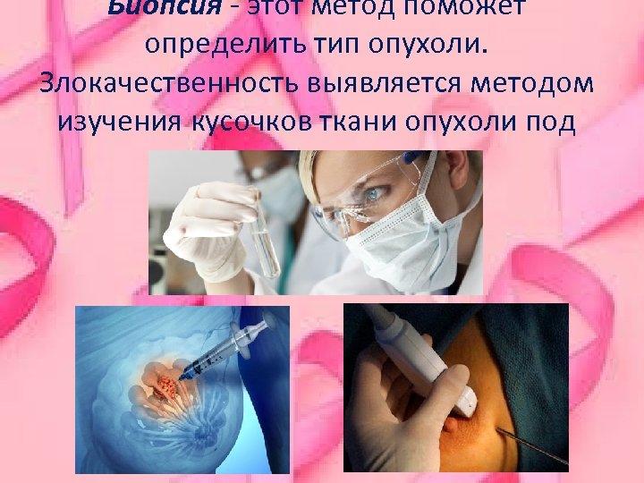 Биопсия - этот метод поможет определить тип опухоли. Злокачественность выявляется методом изучения кусочков ткани