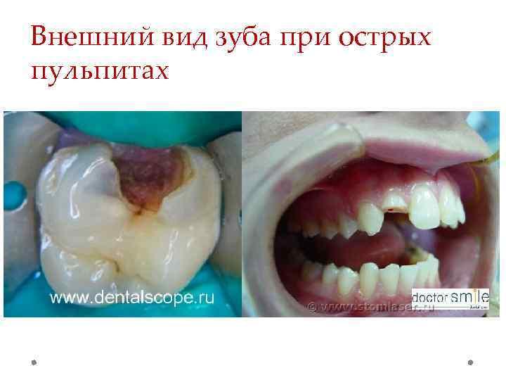 Внешний вид зуба при острых пульпитах