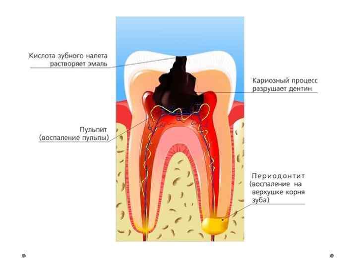 Пульпит и периодонтит зуба: причины появления, лечение и диагностика заболевания