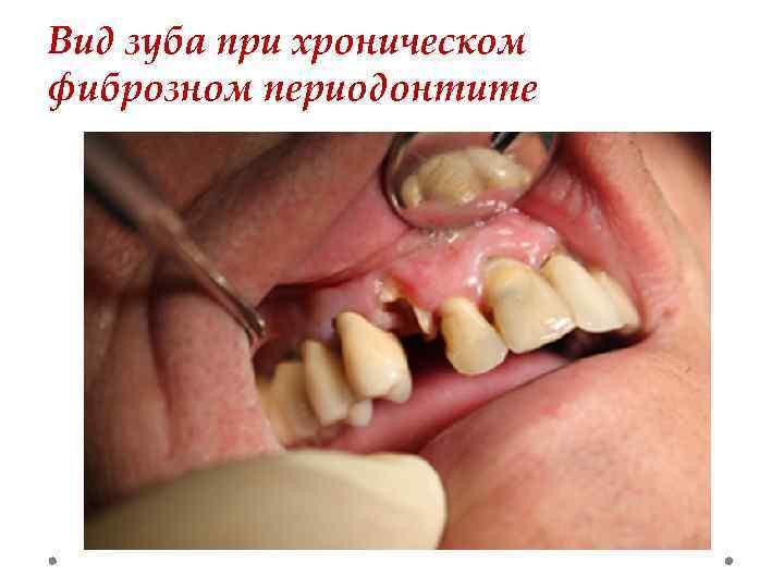 Вид зуба при хроническом фиброзном периодонтите