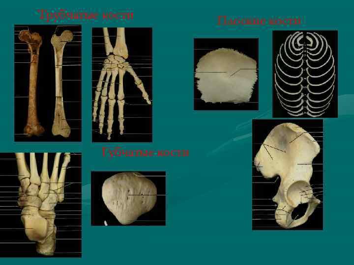 Трубчатые кости Губчатые кости Плоские кости