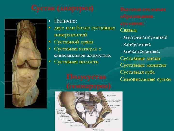Сустав (диартроз) Вспомагательные образования • Наличие: суставов: • двух или более суставных Связки поверхностей