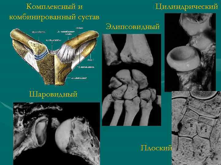 Комплексный и комбинированный сустав Цилиндрический Элипсовидный Шаровидный Плоский