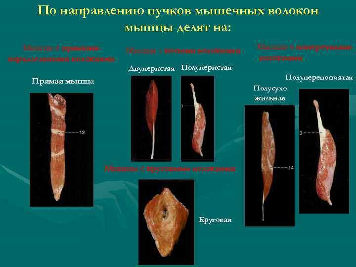 По направлению пучков мышечных волокон мышцы делят на: Мышцы с прямыми параллельными волокнами Мышцы