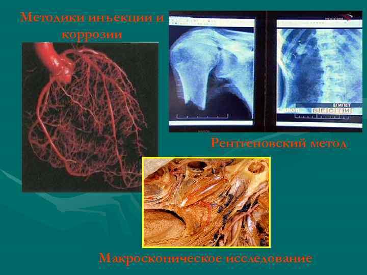 Методики инъекции и коррозии Рентгеновский метод Макроскопическое исследование