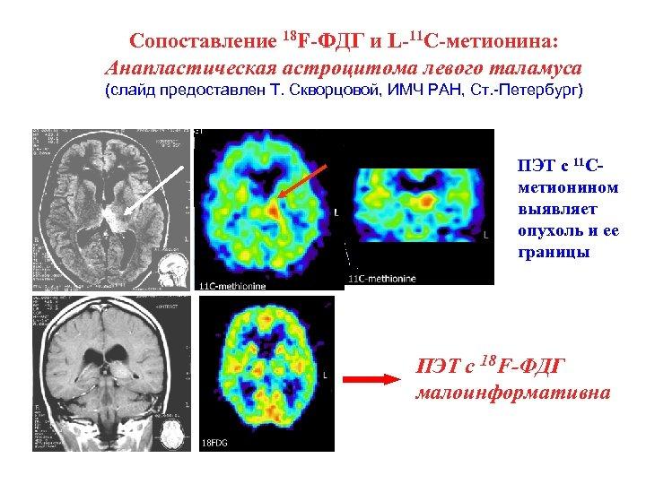 Сопоставление 18 F-ФДГ и L-11 C-метионина: Анапластическая астроцитома левого таламуса (слайд предоставлен Т. Скворцовой,