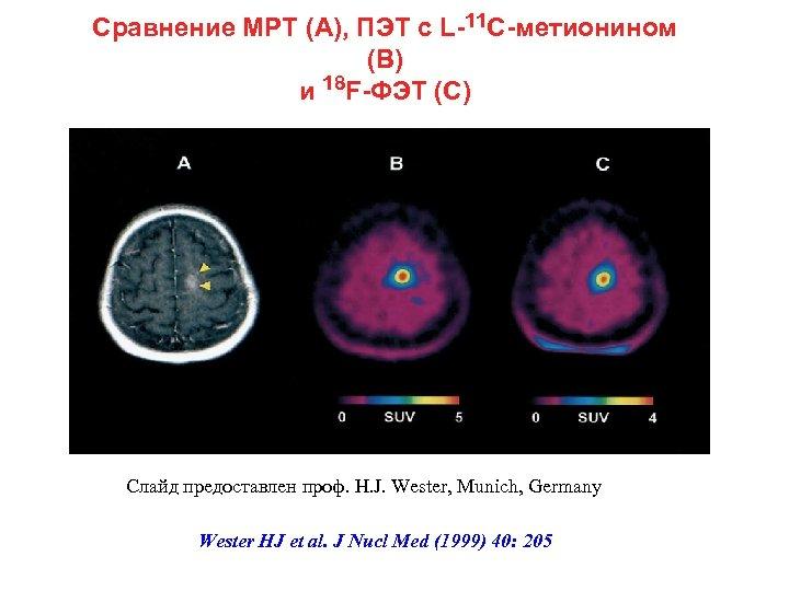 Сравнение МРТ (А), ПЭТ с L-11 C-метионином (В) и 18 F-ФЭТ (С) Слайд предоставлен