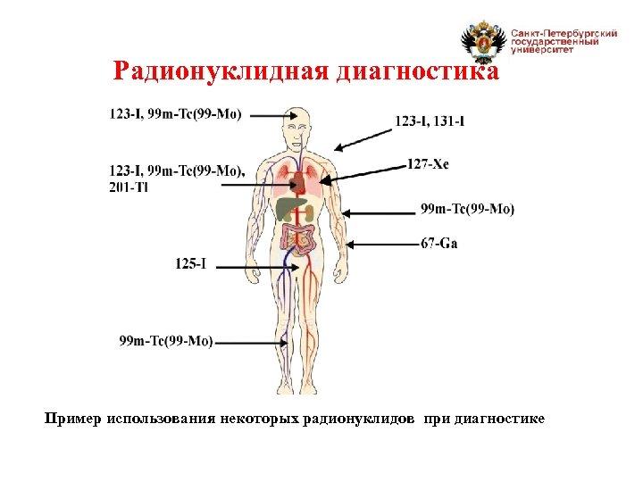 Радионуклидная диагностика Пример использования некоторых радионуклидов при диагностике