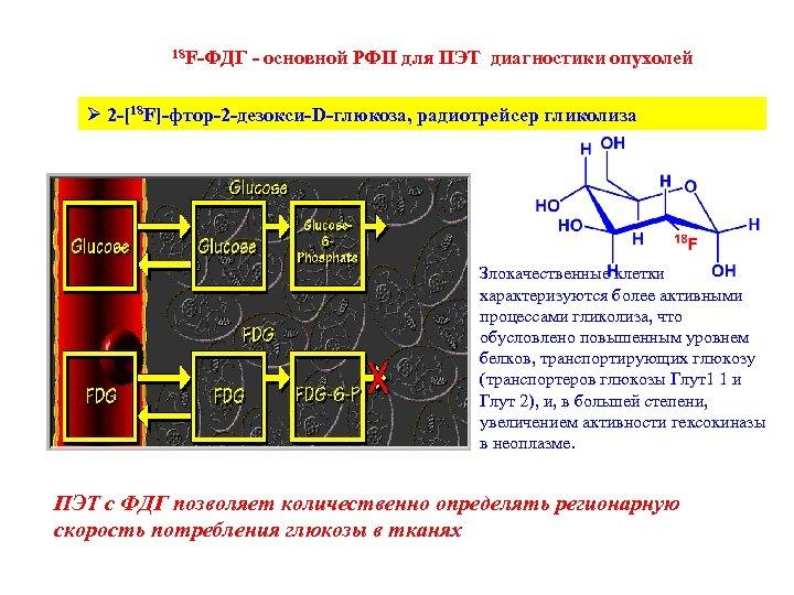 18 F-ФДГ - основной РФП для ПЭТ диагностики опухолей Ø 2 -[18 F]-фтор-2 -дезокси-D-глюкоза,
