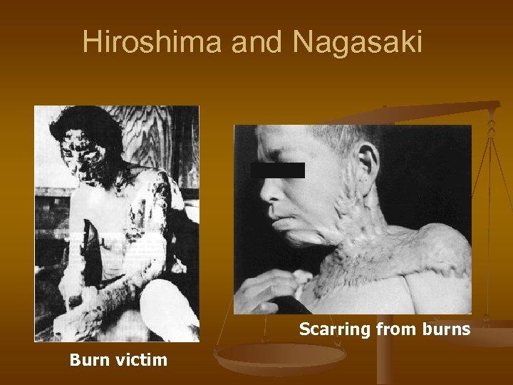 Hiroshima and Nagasaki Scarring from burns Burn victim