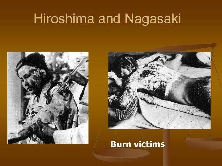 Hiroshima and Nagasaki Burn victims
