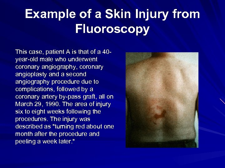 Example of a Skin Injury from Fluoroscopy This case, patient A is that of