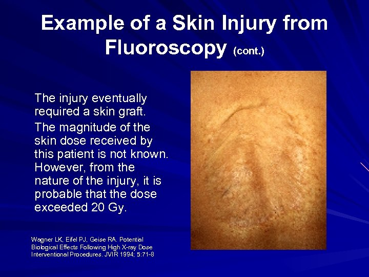 Example of a Skin Injury from Fluoroscopy (cont. ) The injury eventually required a