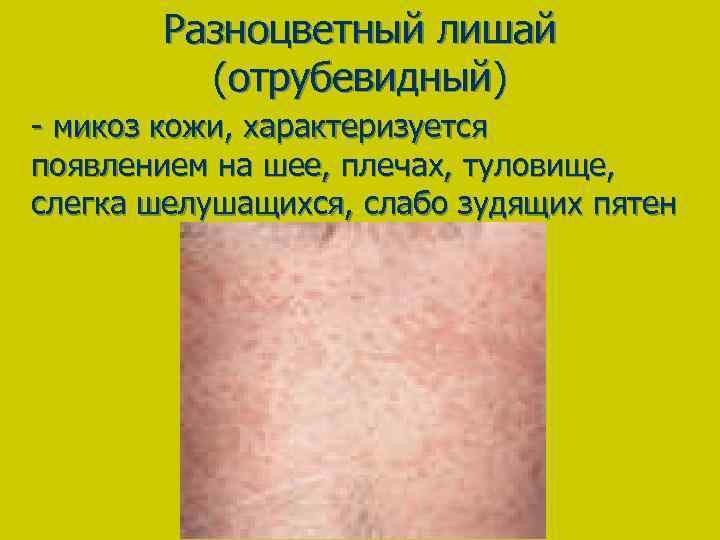 Разноцветный лишай (отрубевидный) - микоз кожи, характеризуется появлением на шее, плечах, туловище, слегка шелушащихся,