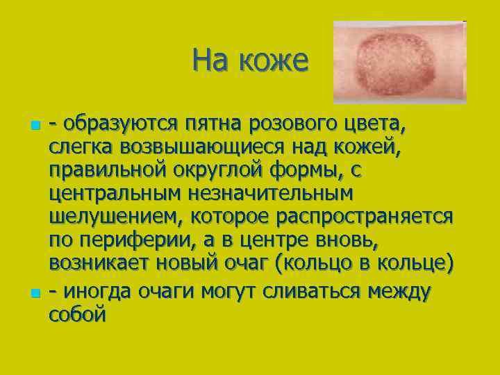На коже n n - образуются пятна розового цвета, слегка возвышающиеся над кожей, правильной