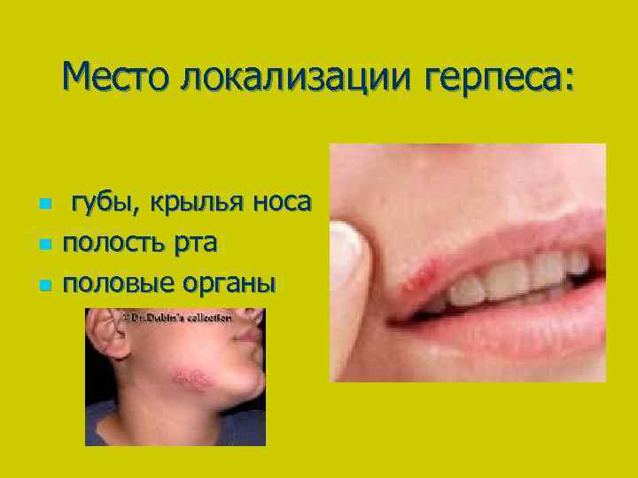 Место локализации герпеса: n n n губы, крылья носа полость рта половые органы