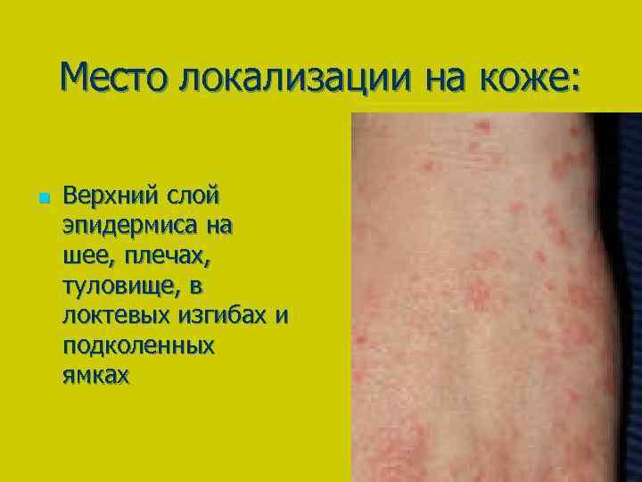 Место локализации на коже: n Верхний слой эпидермиса на шее, плечах, туловище, в локтевых