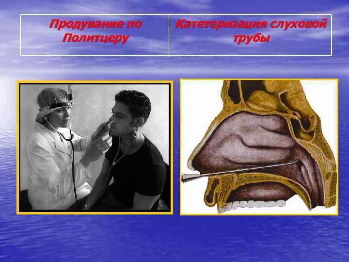 Продувание по Политцеру Катетеризация слуховой трубы