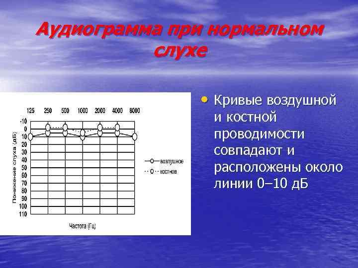 Аудиограмма при нормальном слухе • Кривые воздушной и костной проводимости совпадают и расположены около