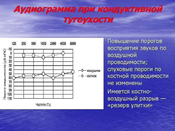 Аудиограмма при кондуктивной тугоухости • Повышение порогов • восприятия звуков по воздушной проводимости; слуховые